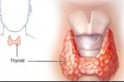 قصور الغدة الدرقية hypothyroidism
